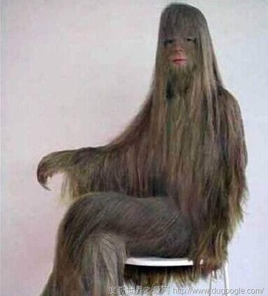 艾米丽·苏珊,世界上体毛最长的人