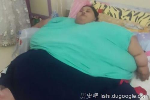 全球最胖女性成功甩肉323公斤 前往阿联酋治疗