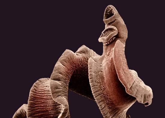 寄生虫   没错,寄生虫真的就是动物王国中最令人恐怖的生物,因为它们将从内到外逐渐吃掉你。血吸虫是最特殊的种类之一,它们潜伏在热带地区并且穿过皮肤进入血液然后向膀胱游动,在那里它们能存活超过30年。血吸虫将继续产卵,并最终会破坏膀胱壁。地球上每四个人中就有一人的胃里存活着这些生物的一种,享受着他们所吃的食物大餐。或许一只线虫会引起你的恐慌,它们和你的手指一样长并且盘踞在你的淋巴结中以你的体液为食。最可怕的是:巨大多数时间,你或许从来都不知道寄生虫潜伏在哪里,让你的身体成为终极鬼屋。